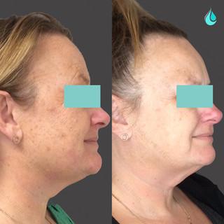 Pigmentation Reduction - 45º