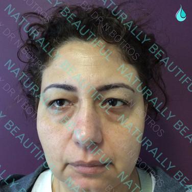Eyelid Blepharoplasty - Before