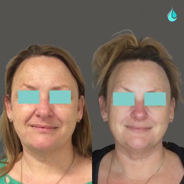 Pigmentation Reduction - Front