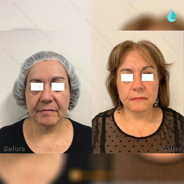 Non-surgical Skin Tightening