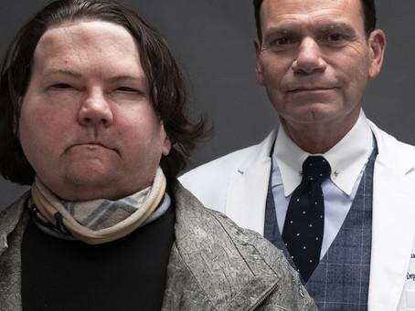 Нью-йоркские врачи объявили о первой в мире успешной пересадке рук и лица