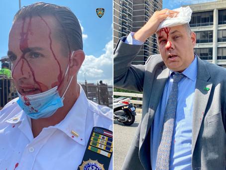 Полицейские, включая начальника департамента, пострадали во время протестов на Бруклинском мосту