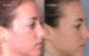 Dermal Infusion Facial