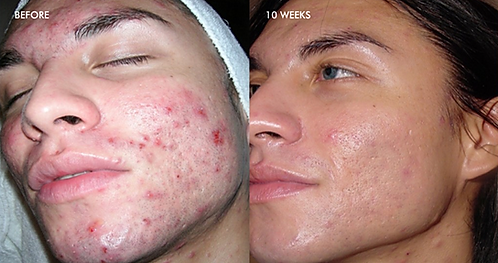 Dermal Infusion Acne