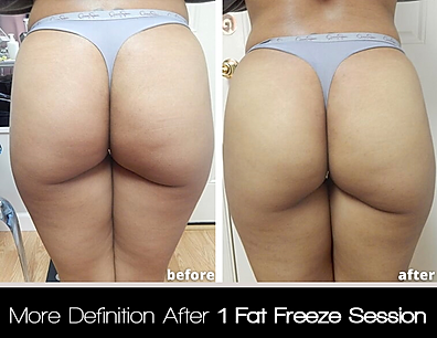 Before After Butt.png