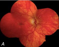 Retinopathy caused by mitochondrial encephalomyopathy