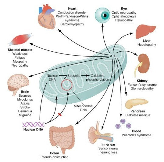 How mitochondrial diseases affect different parts of the body