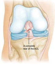 Complete ACL Tear