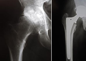 Before and After Hip Replaement X-ray