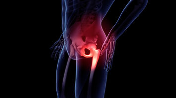 Painful Hip Image