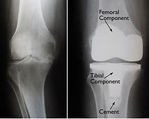 Total Knee Replacement X-ray