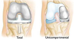 Advantages of Partial Knee Replacement