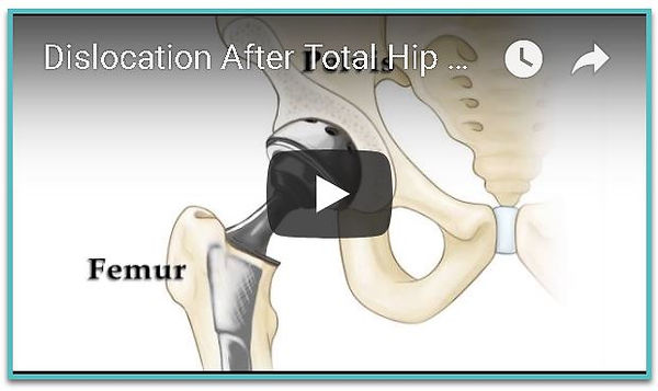 Dislocation After Total Hip Replacement Image