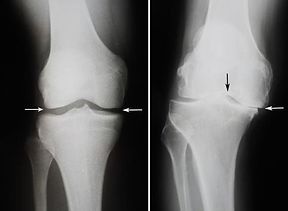 Normal vs arthritic knee x-ray