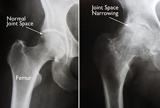 Normal vs Arthritic Hip