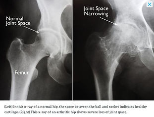 Healthy vs Arthritic Hip