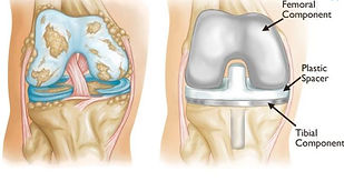 Before and after knee replacemet