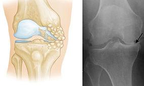 Severe Osteoarthritis