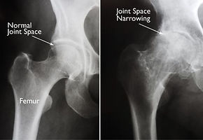 Arthritic Hip X-ray