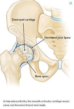 Hip Osteoarthritis