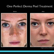 Derma Peel - D'vine Aesthetics