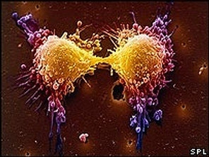 Comment s'alimentent les cellules cancéreuses !!