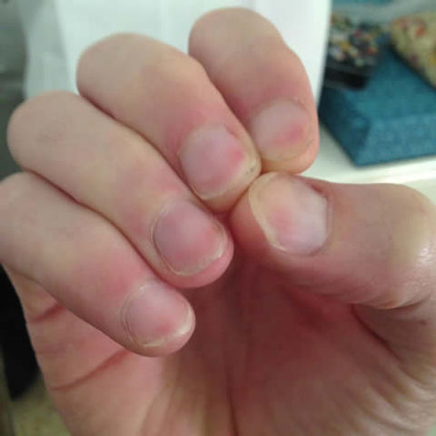 how can i stop biting my nails - nail biting cured with a nail biting dental deterrent device after 8 weeks