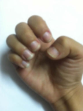 how to stop biting your nails - results after treatment