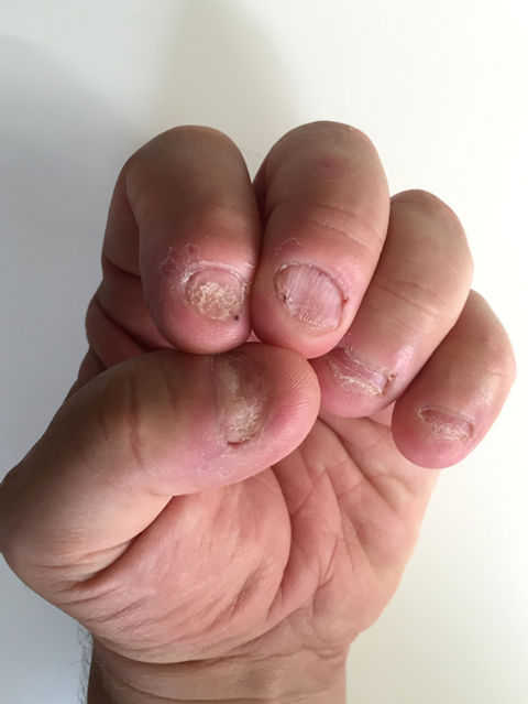 How do you stop biting your nails? nail biting before and after