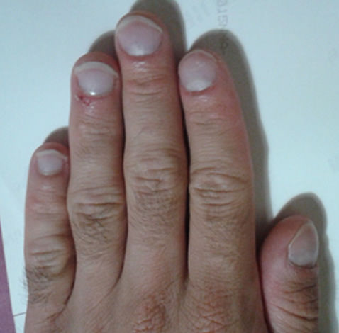 how can i stop biting my nails? - nail biting cure with a nail biting deterrent device, after the treatment