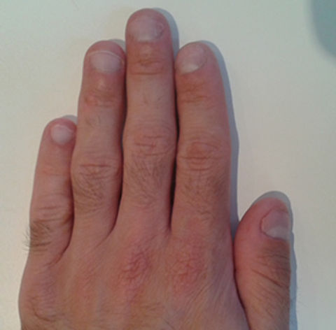 how can i stop biting my nails? - nail biting cure with a nail biting deterrent device, before the treatment