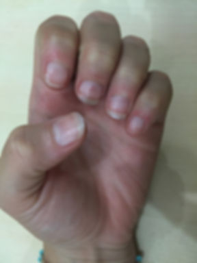 how to stop biting your nails - total cure after 8 weeks