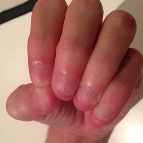 how can i stop biting my nails - nail biting cured with a nail biting dental deterrent device before the treatment