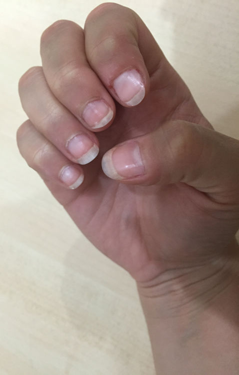 how can i stop biting my nails - nail biting cured with a nail biting deterrent device after 8 weeks