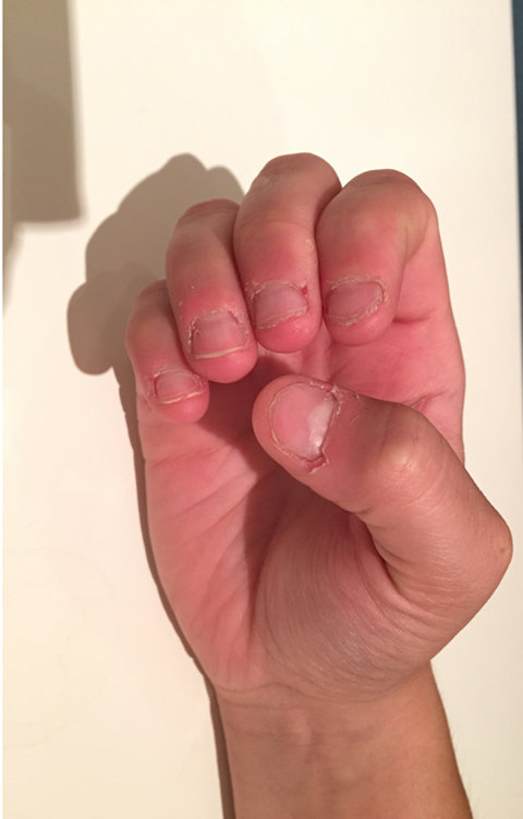 how can i stop biting my nails - nail biting cured with a nail biting deterrent device