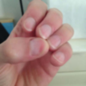 how can i stop biting my nails - nail biting cured with a nail biting dental deterrent device after the treatment