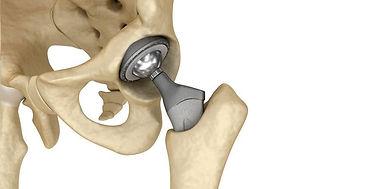 operasi-penggantian-pinggul-total-total-hip-replacement-1585068145.jpg