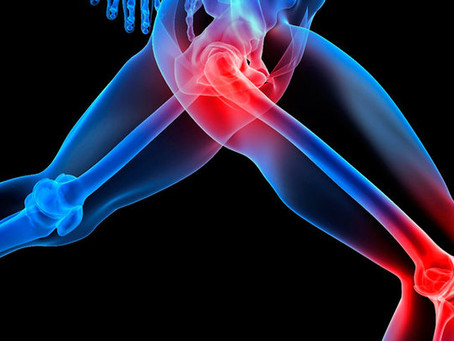 5 Natural Remedies for Joint Pain