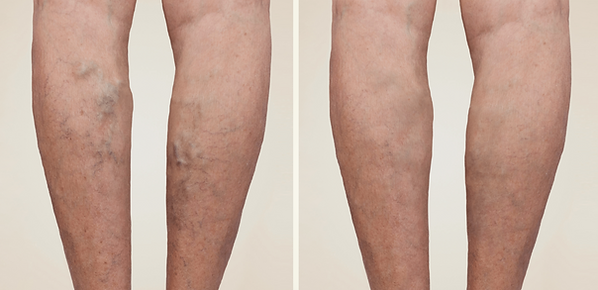 Vanexxe_Treatment-Before_After-opt-1-204