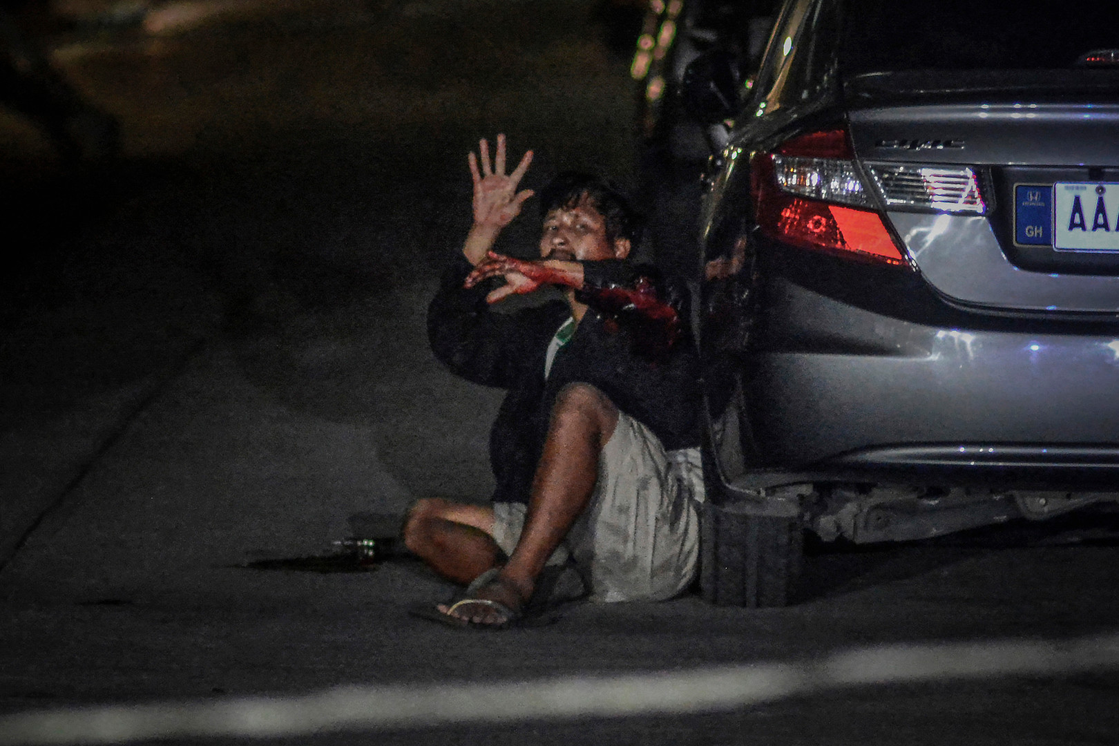 """An injured Francisco Santiago Jr. holds up his arms following what police say was a shootout during a drug buy-bust operation in Manila, Philippines, September 13, 2016. Earlier on police claimed he was killed along with another companion, but later was found out to be only injured after Santiago claimed he """"played dead"""" after being shot by a plain-clothes police officer."""