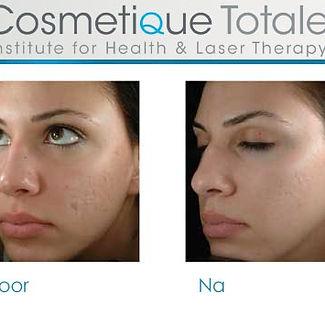 huidverjongings behandeling