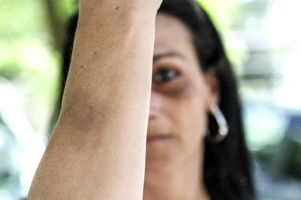 S.G. foi agredida pelo namorado, lutador de MMA (Foto: Rodrigo Felix Leal).