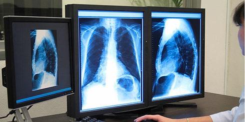 high-definition-healthcare-Digital-X-Ray