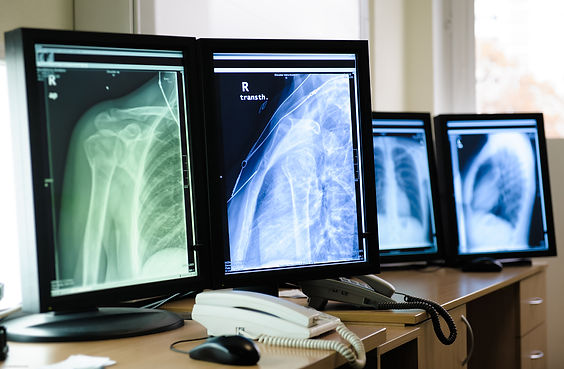 Radiography.jpg