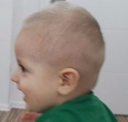 profil dojenčka po korekciji zaležane glave