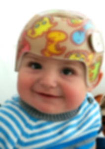 dojenček s čelado na glavi
