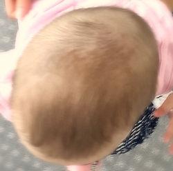 glava dojenčka z strukturalno kraniosinestozo