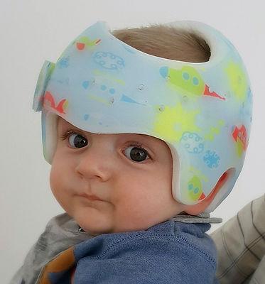dojenček z čelado za korekcijo zaležane glave