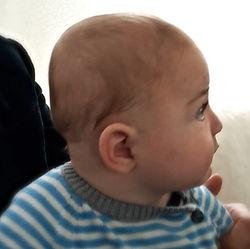 profil otroka z korigirano plagiocefalijo