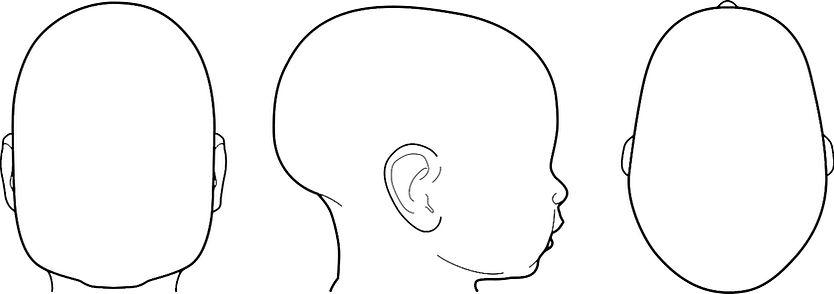 skafocefalija, zaležana glava